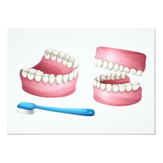 Dentures Invitations