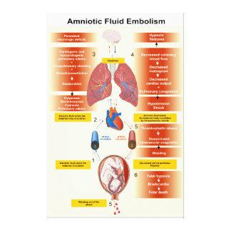 Diagram of an Amniotic Fluid Embolism AFE Canvas Prints