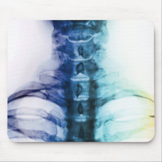 Digital Cervical X-Ray Art Mouse Pad