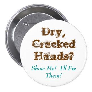 Dry,CrackedHands?, Show Me!  I'll Fix Them! 7.5 Cm Round Badge
