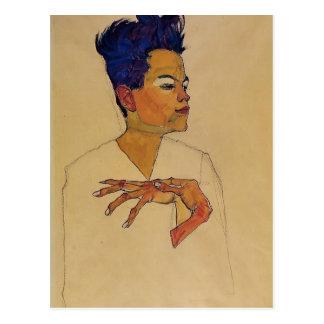 Egon Schiele- Self Portrait with Hands on Chest Postcard