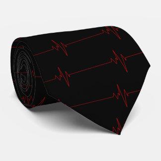 EKG #2 TIE