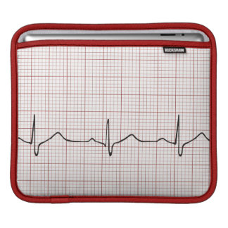 EKG heartbeat on graph paper, PhD (doctor) pulse iPad Sleeves