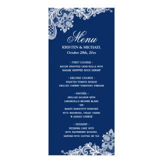 Elegant Navy Blue White Lace Wedding Menu Template Rack Card