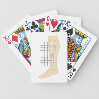 External Fixator Bicycle Playing Cards