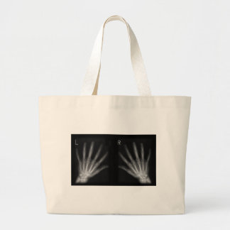 Extra Digit X-ray Right & Left Hands Jumbo Tote Bag