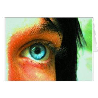 Eye Miss You Greeting Card