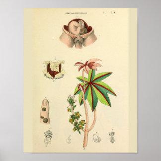 Fetus Position Uterus Vintage Anatomy Art Print