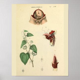 Fetus Uterus Vintage Anatomy Art Print