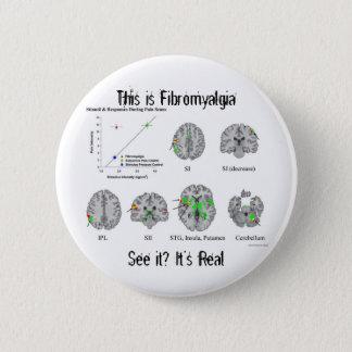 Fibromyalgia is real. fMRI proof 6 Cm Round Badge