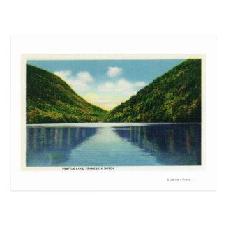 Franconia Notch State Park View of Profile Lake Postcard
