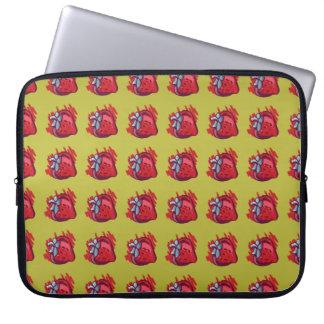 Fruit Patterns Strawberries on gold Electrinics Laptop Sleeve