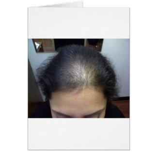 Hair T Cards