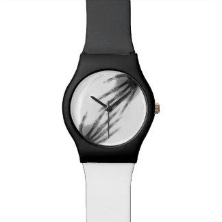 hand bones wrist watch