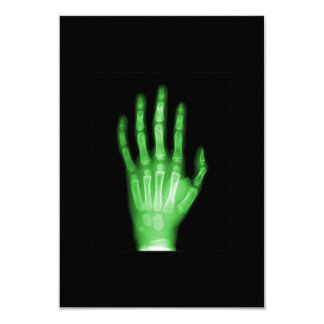 HAND SKELETON green XRAY DARK SCARY HUMAN BREAK BO 3.5x5 Paper Invitation Card