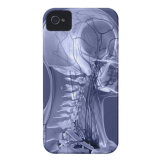 Head and Neck Blood Vessels iPhone 4 Cover