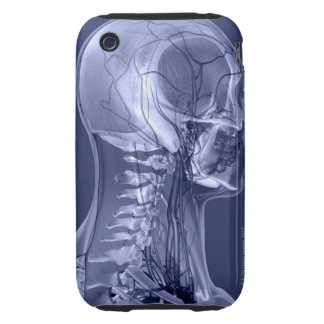 Head and Neck Blood Vessels iPhone 3 Tough Cases