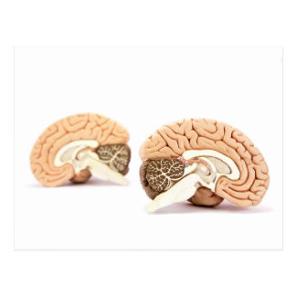 Human brains model isolated on white background postcard