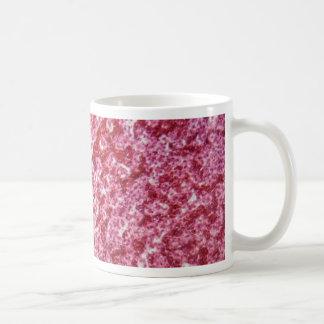Human liver cells with cancer coffee mug