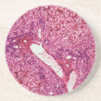Human liver cells with cancer under the microscope coaster