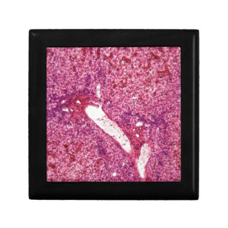 Human liver cells with cancer under the microscope gift box