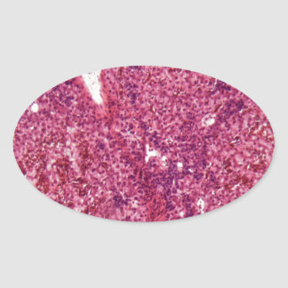 Human liver cells with cancer under the microscope oval sticker