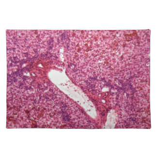 Human liver cells with cancer under the microscope placemat