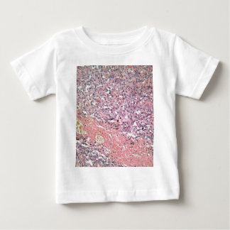 Human skin with skin cancer under a microscope. baby T-Shirt