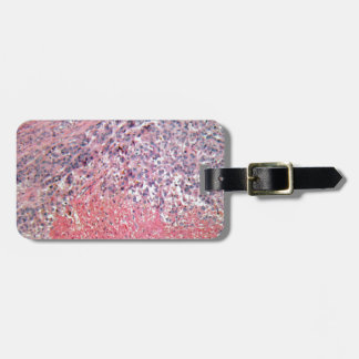 Human skin with skin cancer under a microscope. bag tag