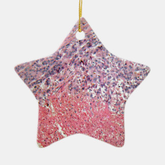 Human skin with skin cancer under a microscope. ceramic star decoration