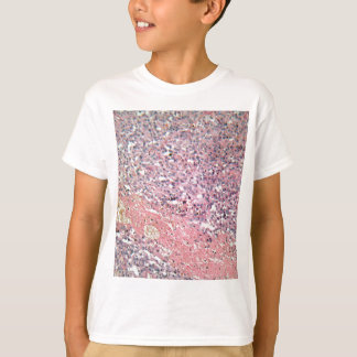 Human skin with skin cancer under a microscope. T-Shirt