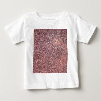 Human spleen with chronic myelogenous leukemia baby T-Shirt