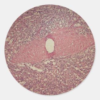 Human spleen with chronic myelogenous leukemia classic round sticker