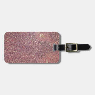 Human spleen with chronic myelogenous leukemia luggage tag