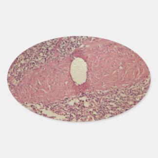 Human spleen with chronic myelogenous leukemia oval sticker