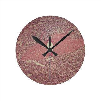 Human spleen with chronic myelogenous leukemia round clock