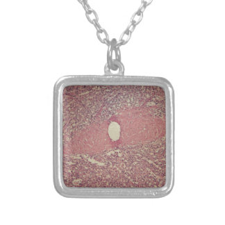 Human spleen with chronic myelogenous leukemia silver plated necklace