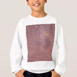 Human spleen with chronic myelogenous leukemia sweatshirt