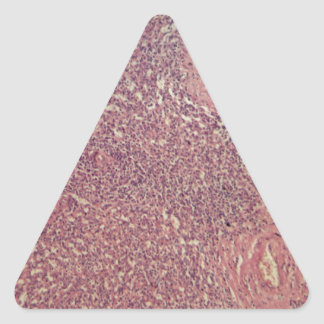 Human spleen with chronic myelogenous leukemia triangle sticker