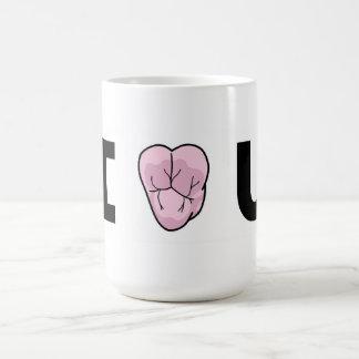 """I [Heart-Shaped-Molar} U"" Mug"