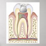Illustration of Dental Filling Print