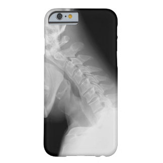 Jaw and Spine X Ray iPhone 6 case Barely There iPhone 6 Case