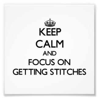 Keep Calm and focus on Getting Stitches Photo