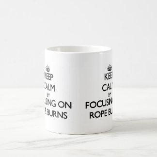 Keep Calm by focusing on Rope Burns Mugs