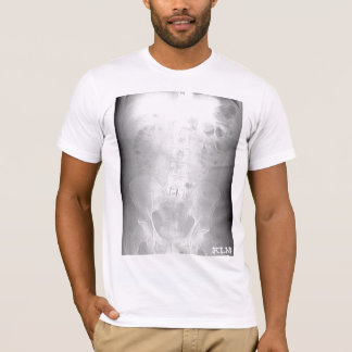 L-5/S1 CT Scan-initialed-by KLM T-Shirt