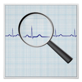 Magnifying glass on ecg diagram Poster