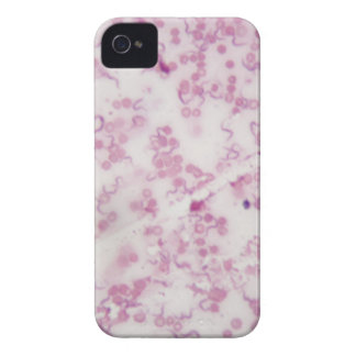Microscope photo of human blood with Trypanosoma b iPhone 4 Case