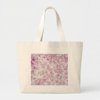 Microscope photo of human blood with Trypanosoma b Large Tote Bag