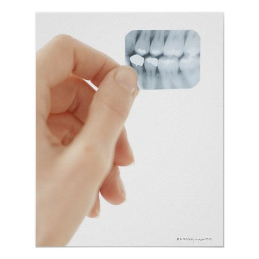 MODEL RELEASED. Dental X-ray. Posters