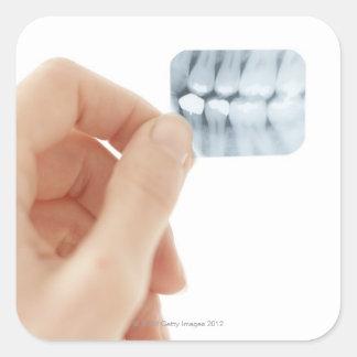 MODEL RELEASED. Dental X-ray. Square Sticker